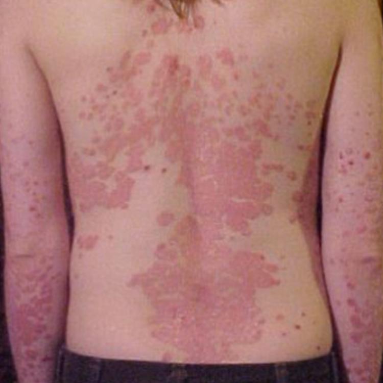 Dermatología Clínica - Enfermedades de la Piel