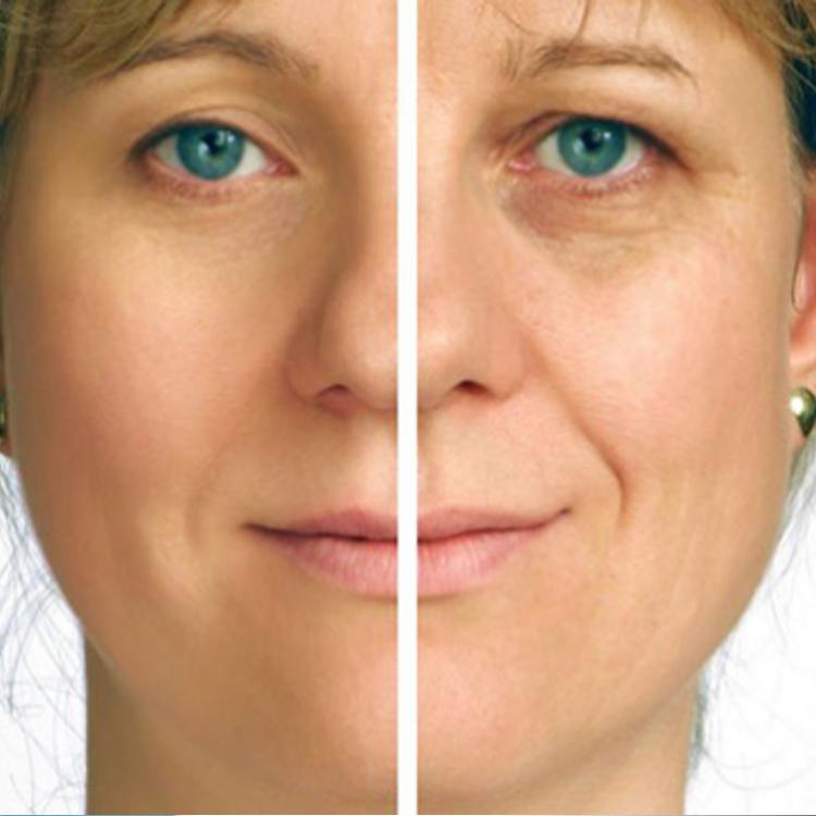 Dermatología Estética - Plasma Rico en Plaquetas
